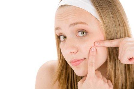 Kozmetikus Pécs - Tini kezelés